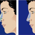 nasal reconstruction - nose job in Raleigh